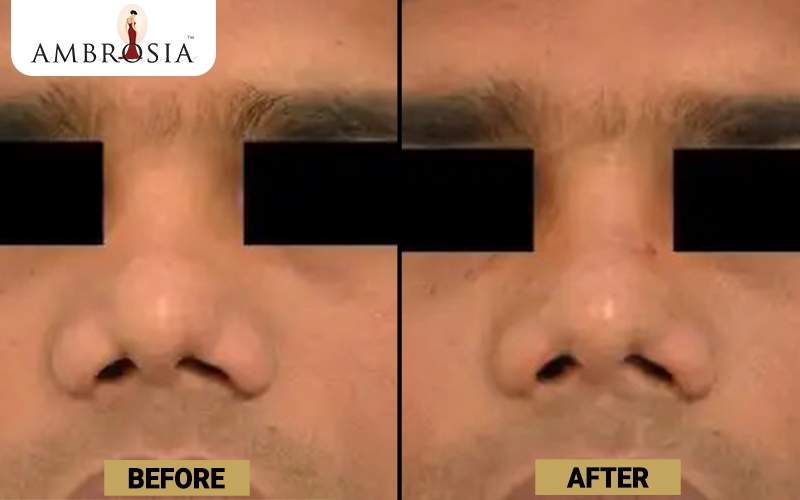 Rhinoplasty Before and After Images of Patient 2