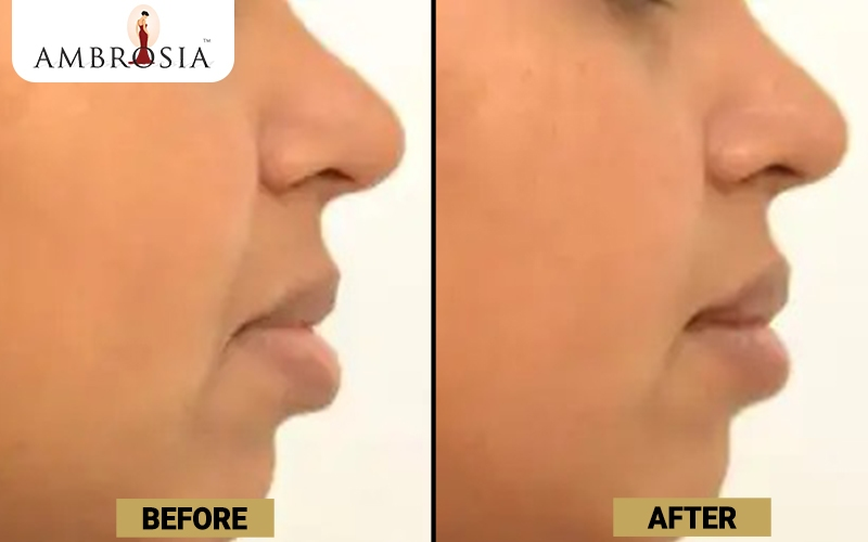 Rhinoplasty Before and After Image of Patient 1