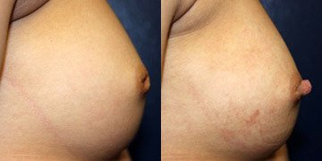 Breast Augmentation with Inverted Nipple Surgery, Post Age 30 - Can it be done?